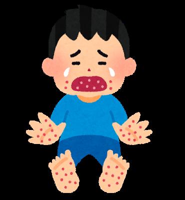 子供の発疹が手足だけに!考えられる病気と対処法について